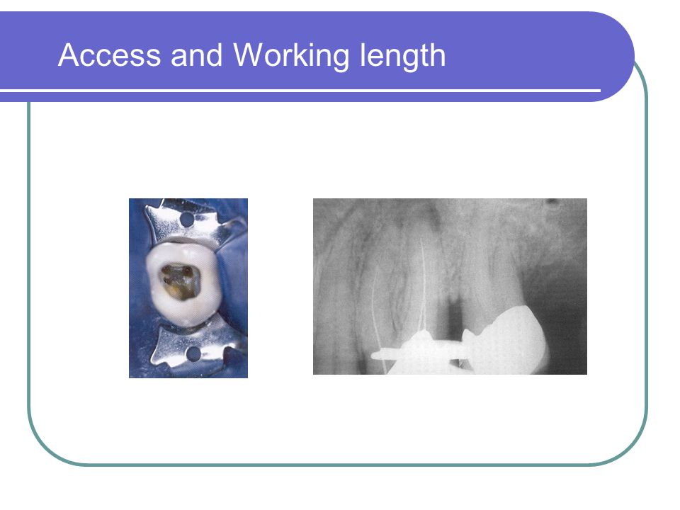 Access and Working length
