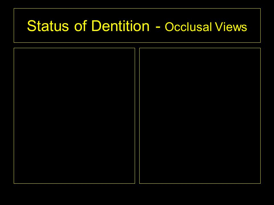 Status of Dentition - Occlusal Views
