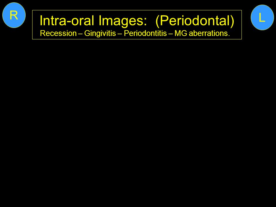 Intra-oral Images: (Periodontal)