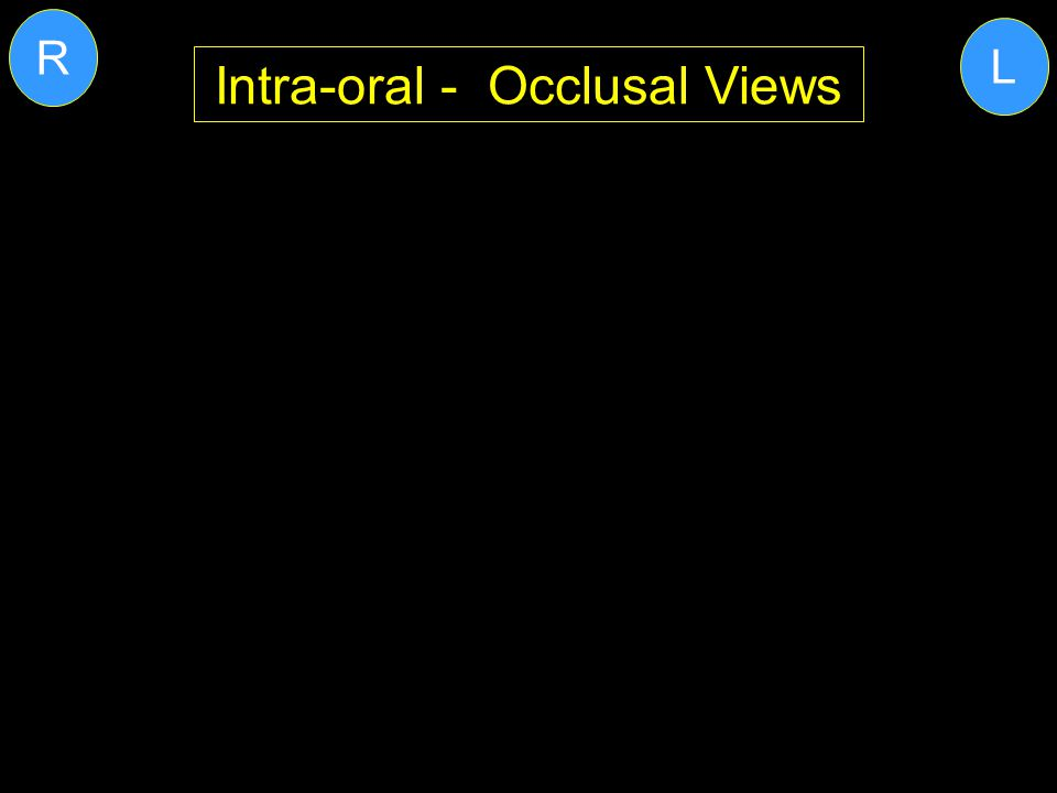 Intra-oral - Occlusal Views