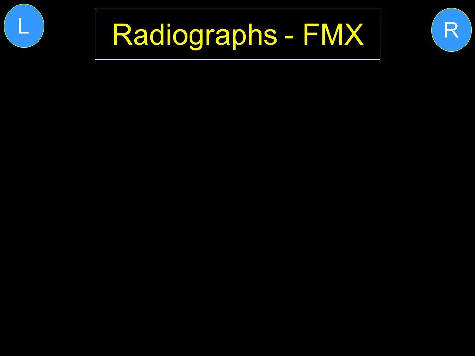 L Radiographs - FMX R