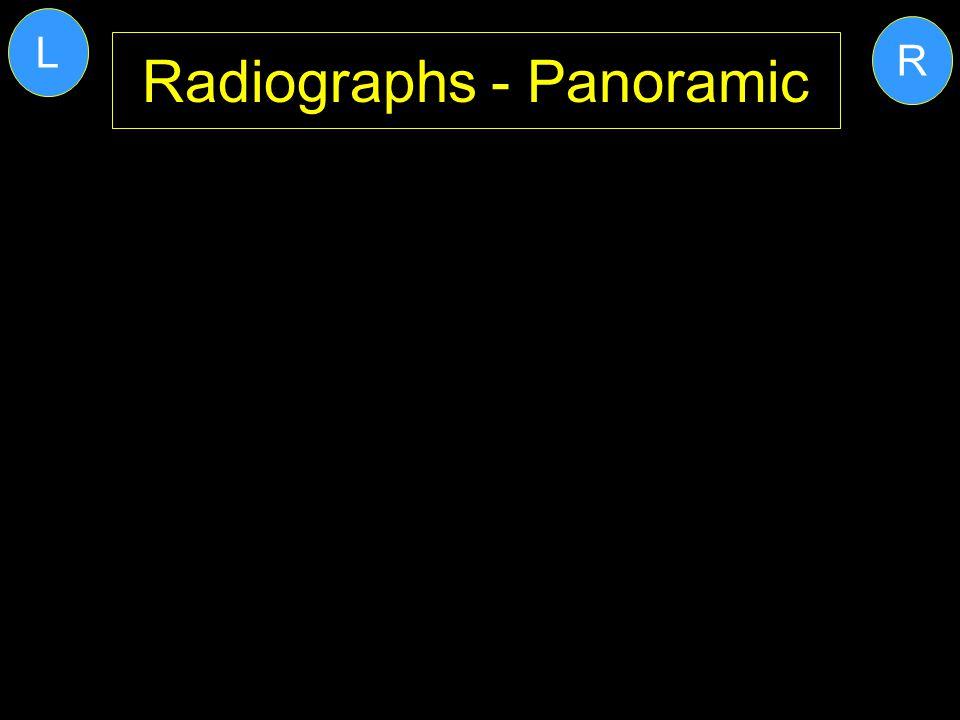 Radiographs - Panoramic