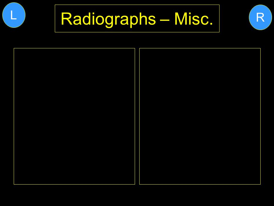 L Radiographs – Misc. R