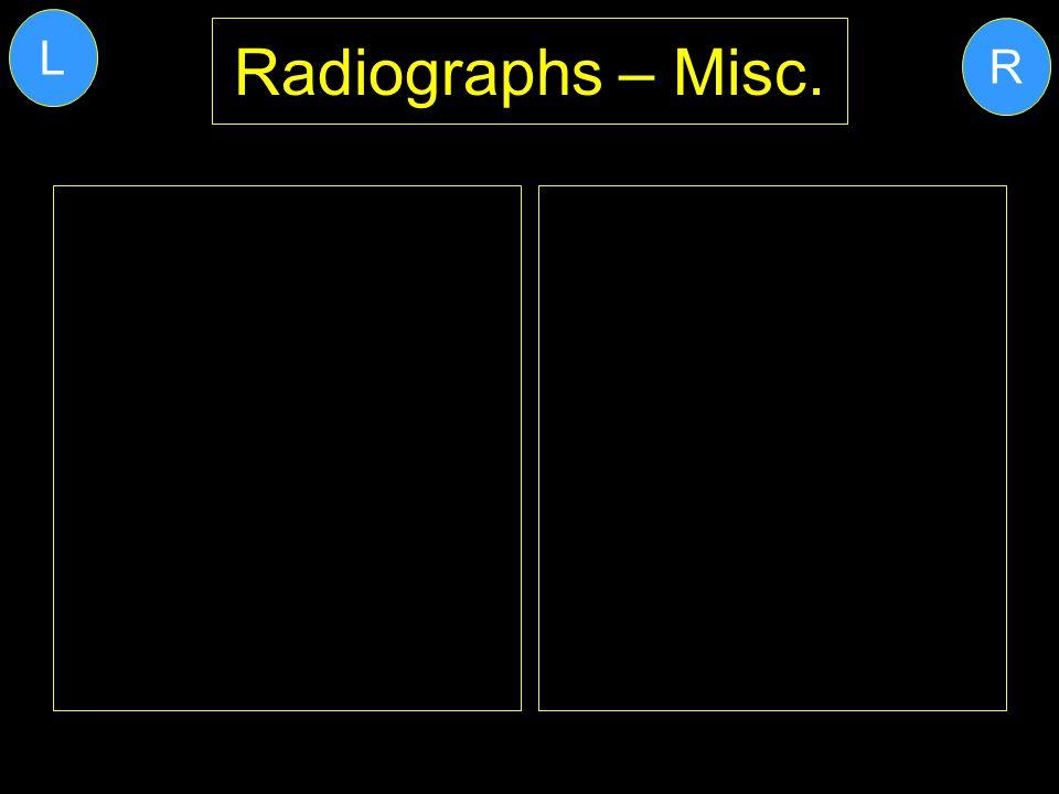 L Radiographs – Misc. R