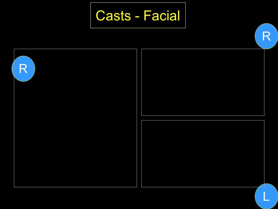 Casts - Facial R R L
