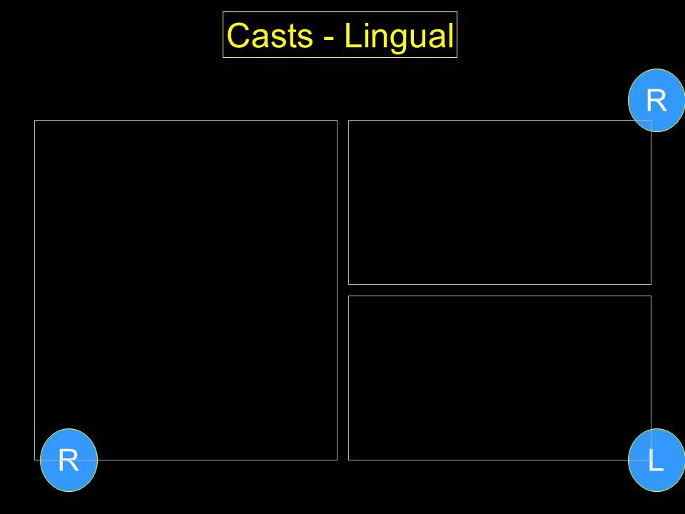 Casts - Lingual R R L