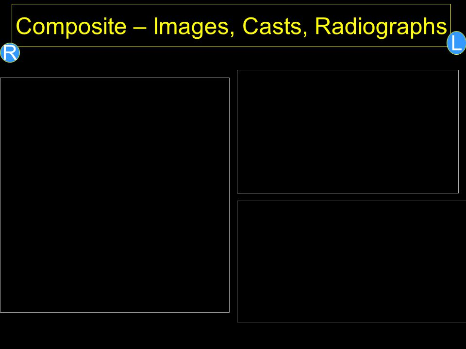 Composite – Images, Casts, Radiographs