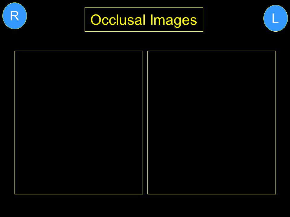 R L Occlusal Images