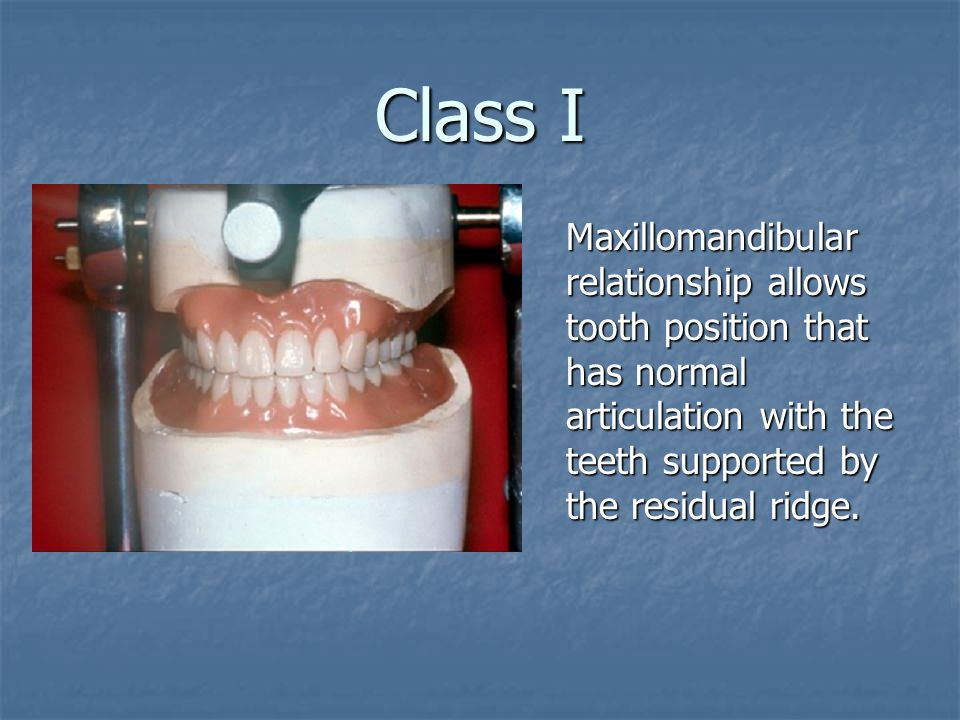 Class I Maxillomandibular relationship allows tooth position that has normal articulation with the teeth supported by the residual ridge.