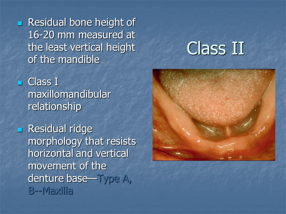 Residual bone height of 16-20 mm measured at the least vertical height of the mandible