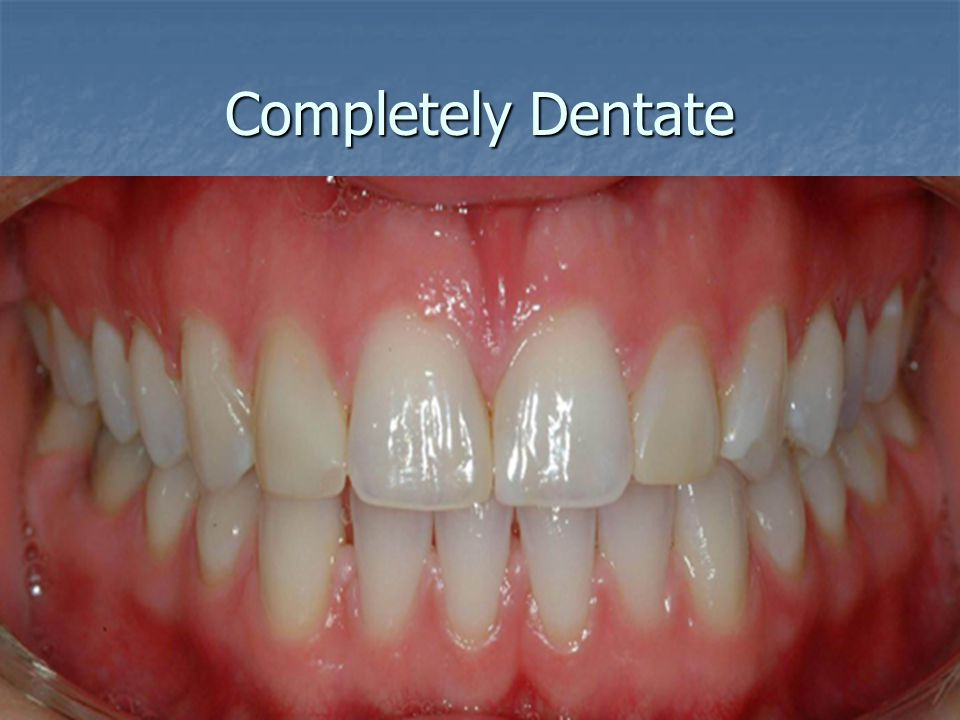 Completely Dentate