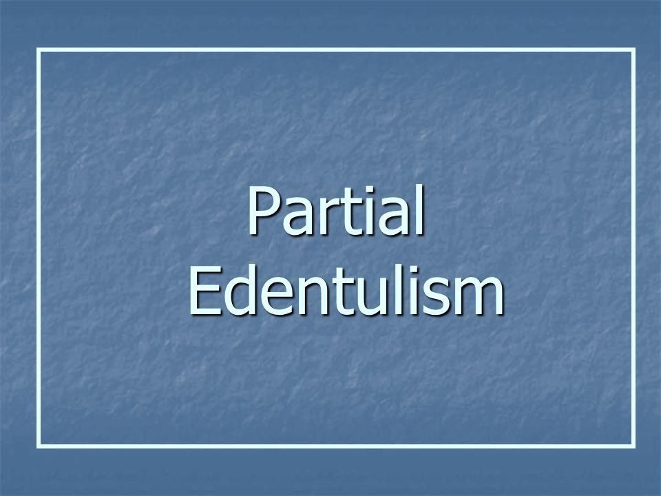 Partial Edentulism