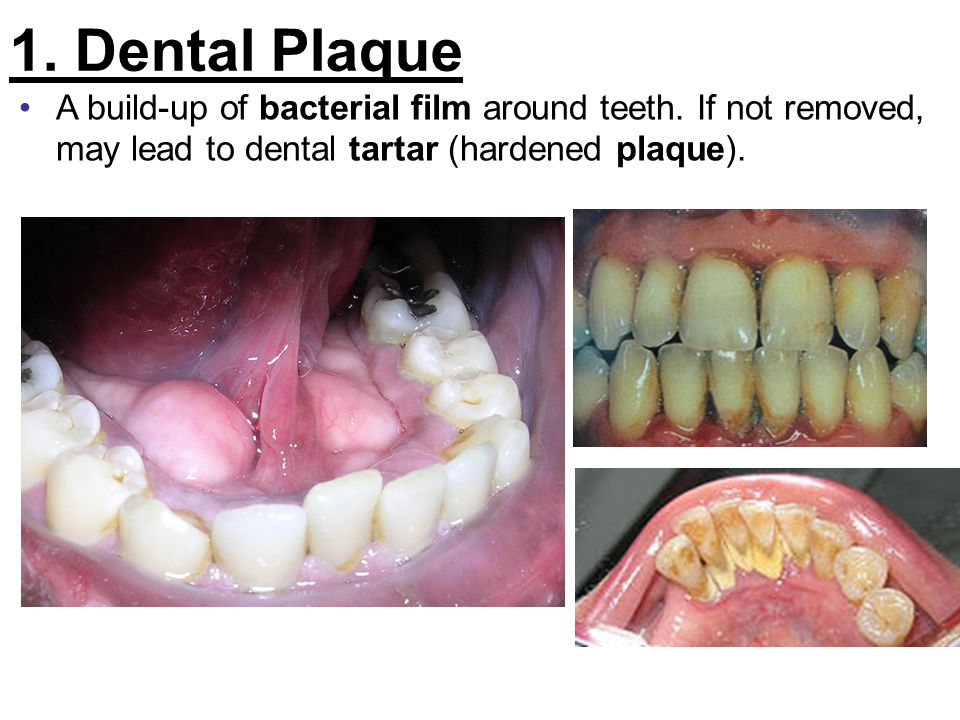 1. Dental Plaque A build-up of bacterial film around teeth.