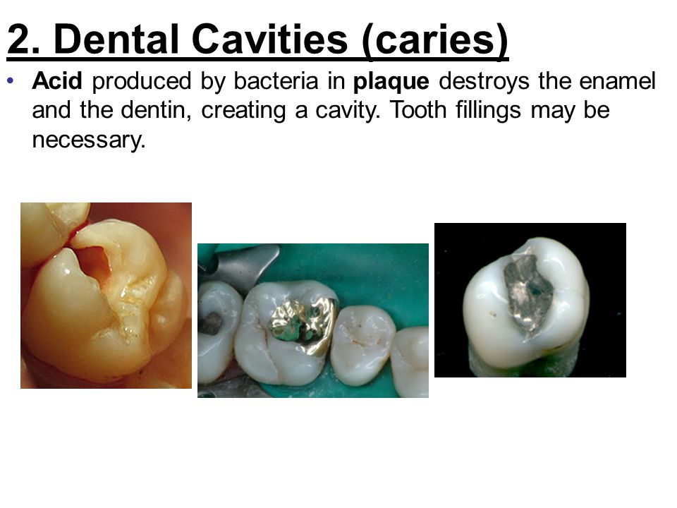 2. Dental Cavities (caries)