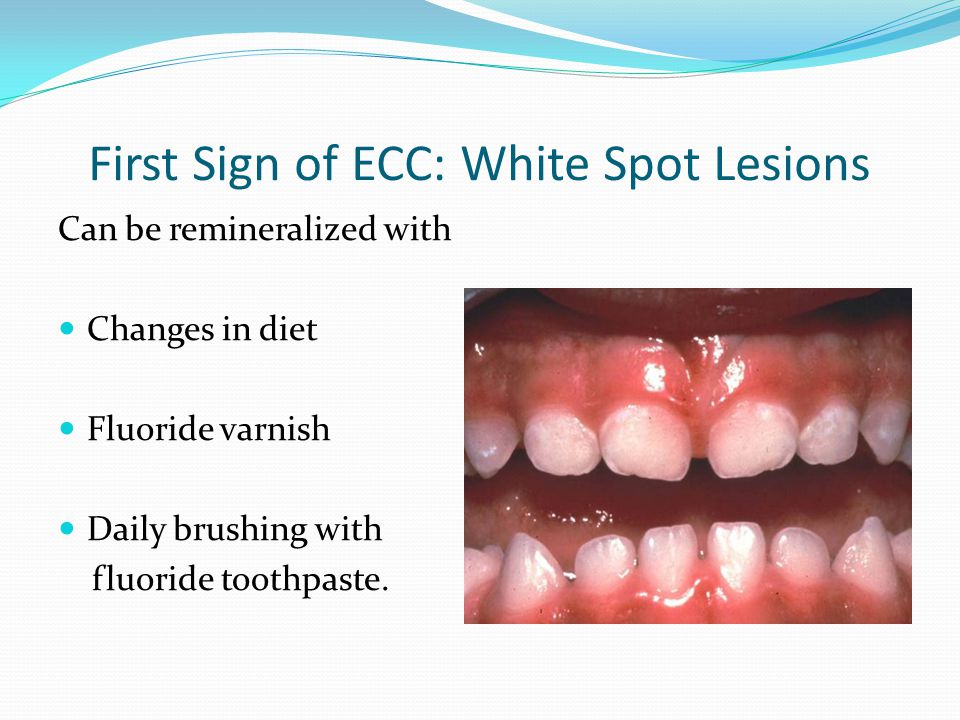 First Sign of ECC: White Spot Lesions