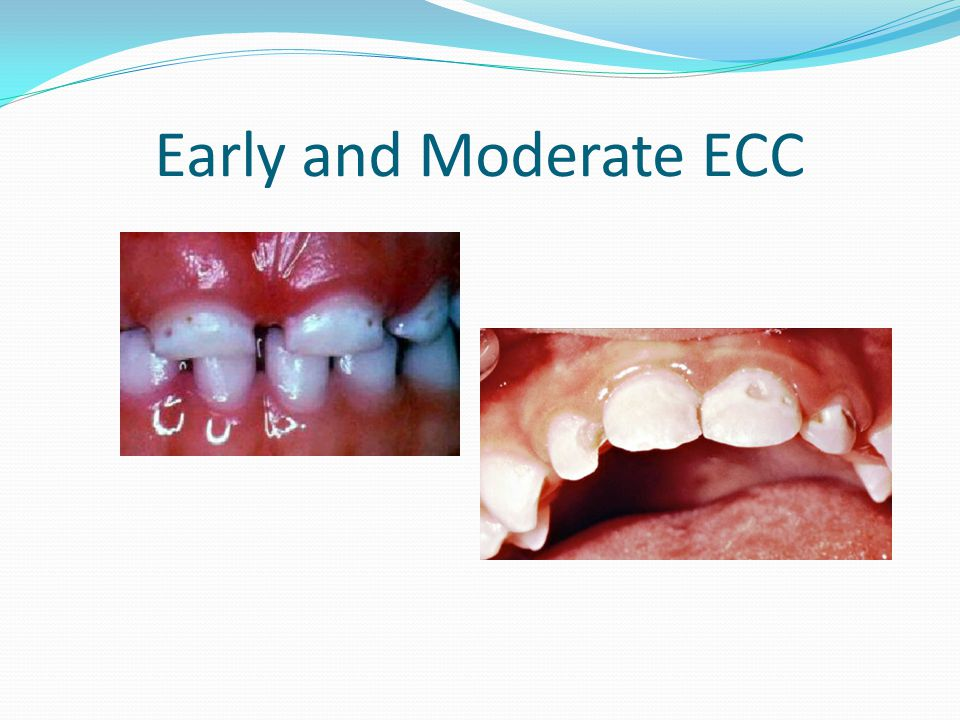 Early and Moderate ECC The early and moderate stages of ECC begin with brown pitted areas on the teeth.