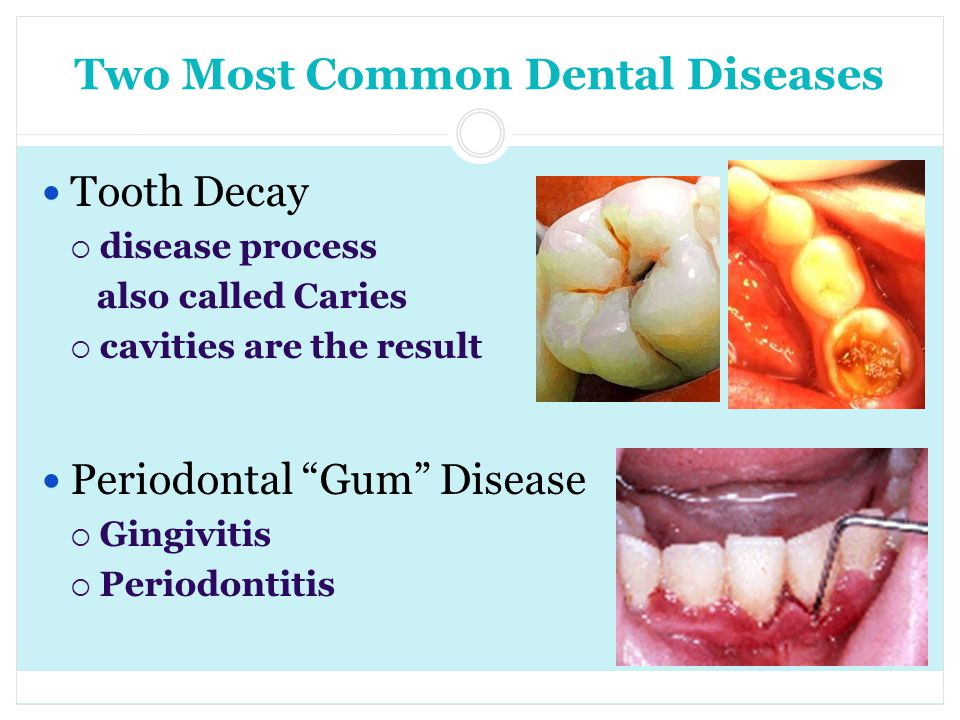 Two Most Common Dental Diseases