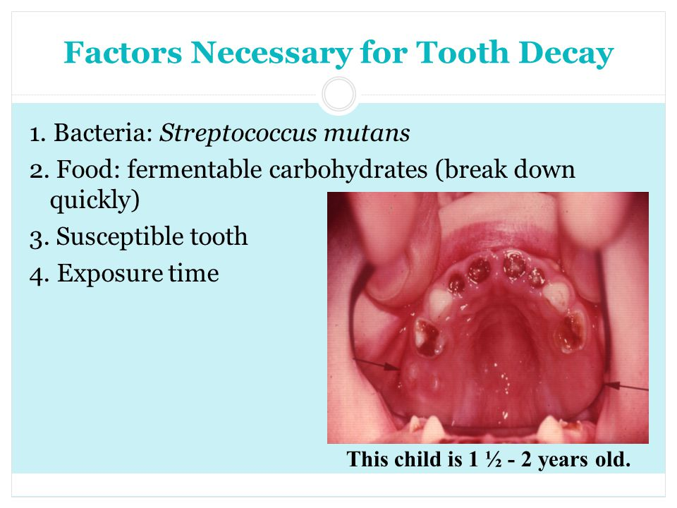 Factors Necessary for Tooth Decay