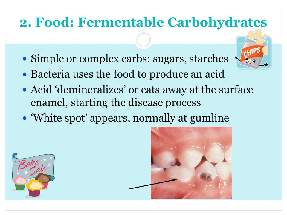 2. Food: Fermentable Carbohydrates