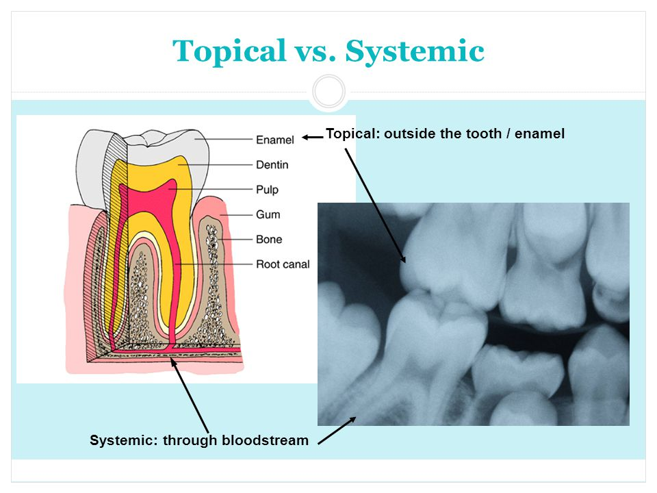 Topical vs. Systemic Topical: outside the tooth / enamel