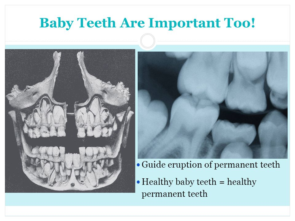 Baby Teeth Are Important Too!
