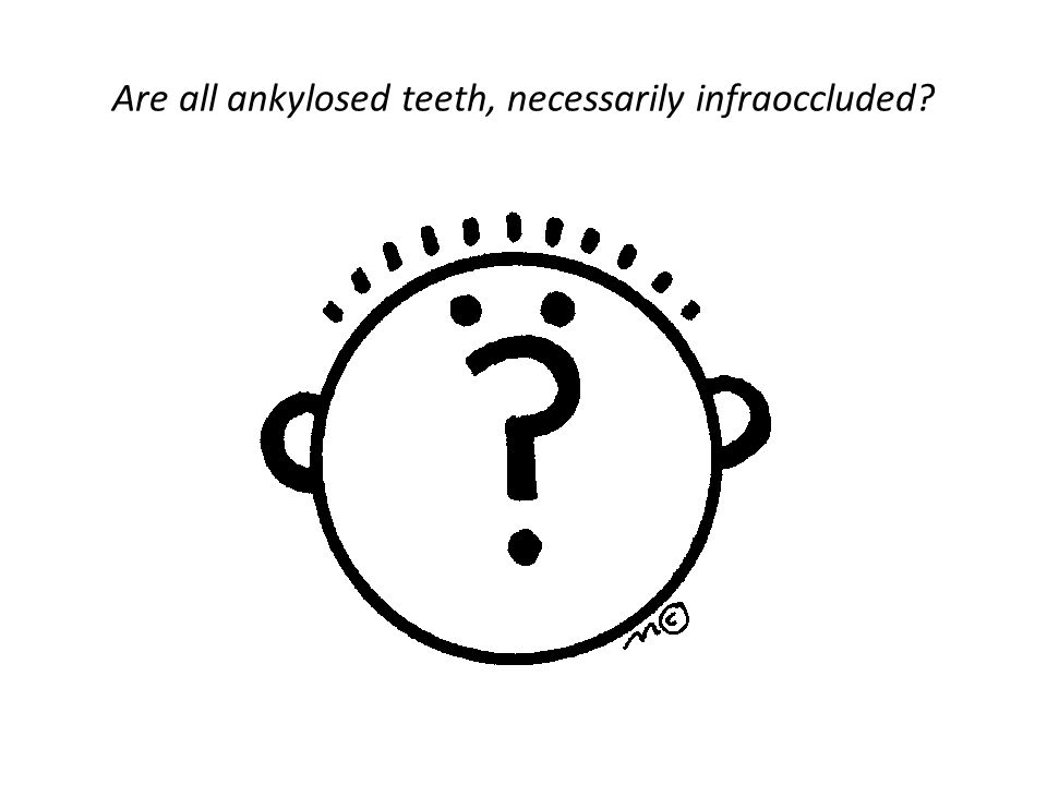 Are all ankylosed teeth, necessarily infraoccluded
