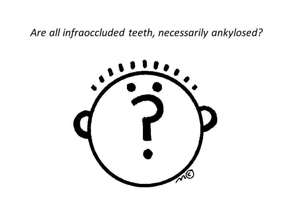 Are all infraoccluded teeth, necessarily ankylosed