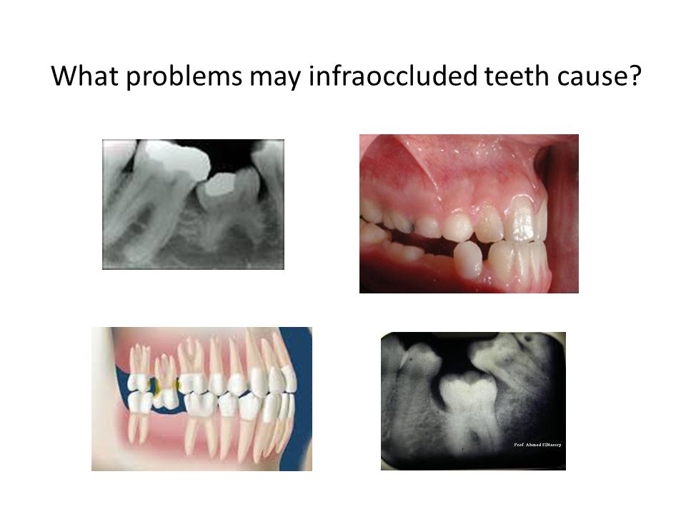 What problems may infraoccluded teeth cause