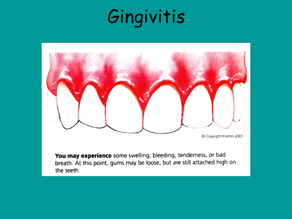 Gingivitis This picture shows a mouth that is infected with gingivitis and you can tell by the redness and the swelling of the gums.