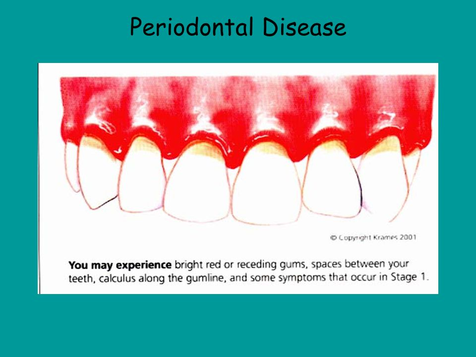Periodontal Disease This picture shows periodontal disease and you can tell because the gums are receding and the gums are swollen and red.