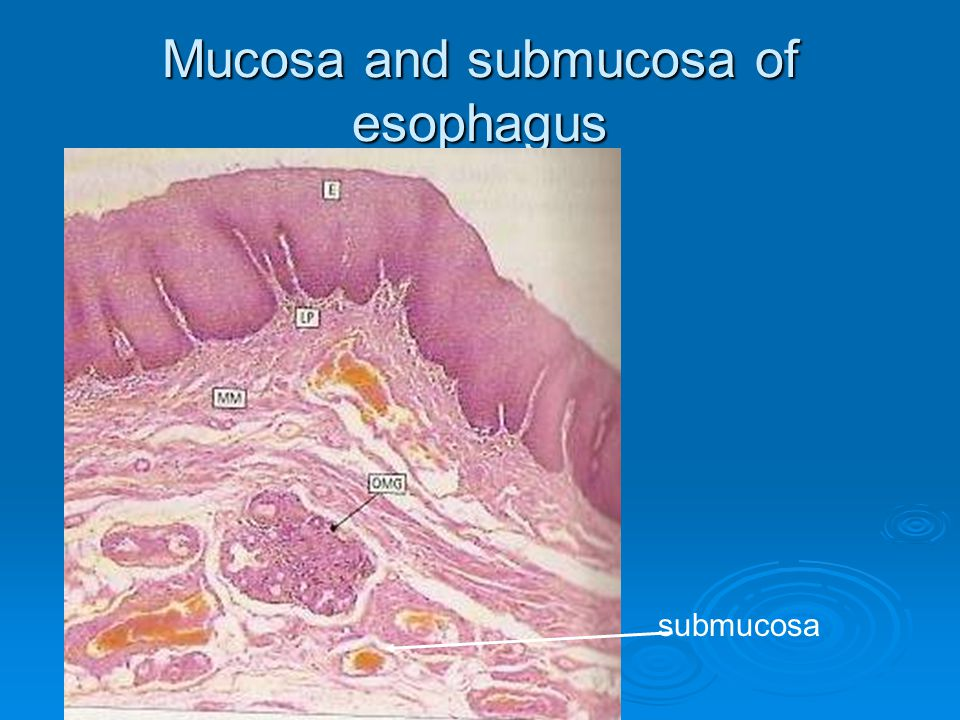 Mucosa and submucosa of esophagus
