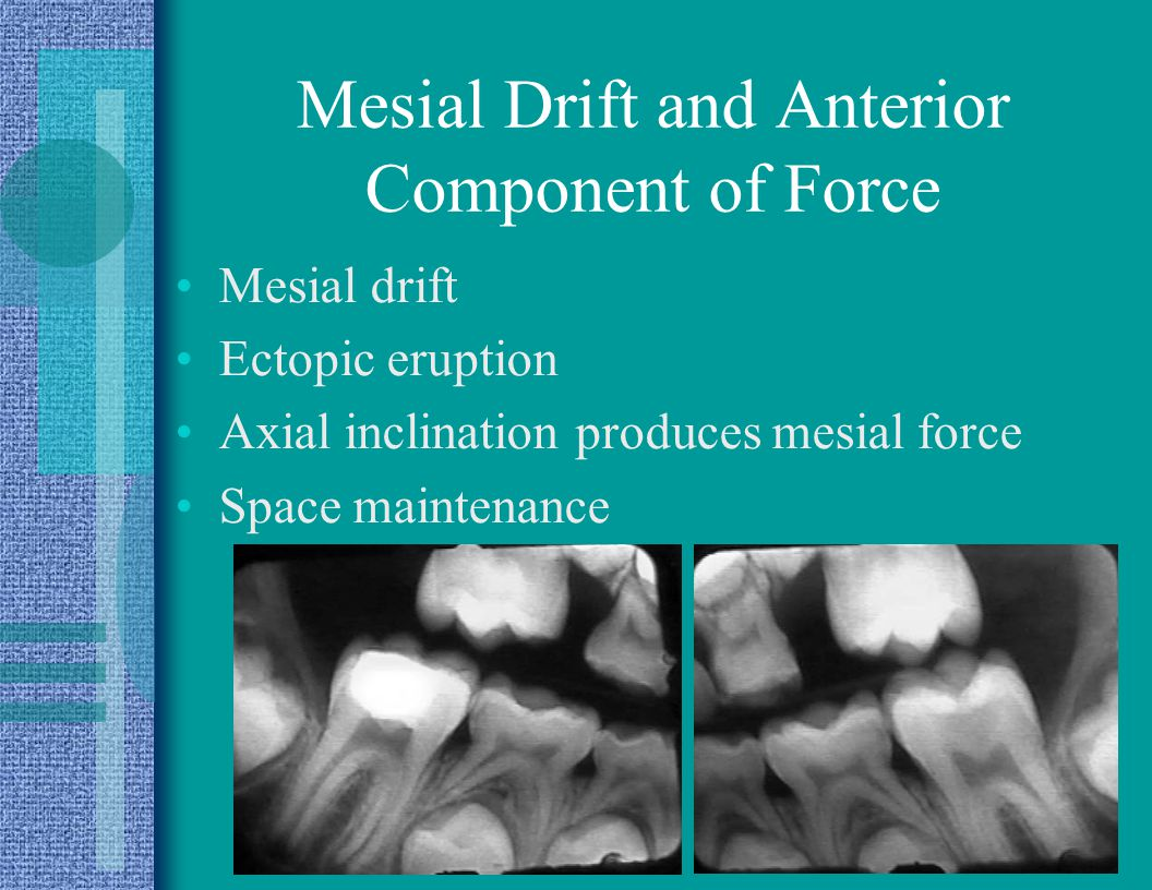 Mesial Drift and Anterior Component of Force