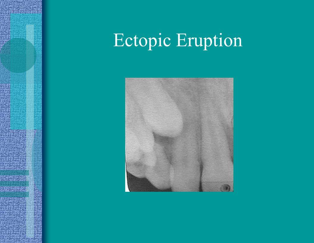 Ectopic Eruption