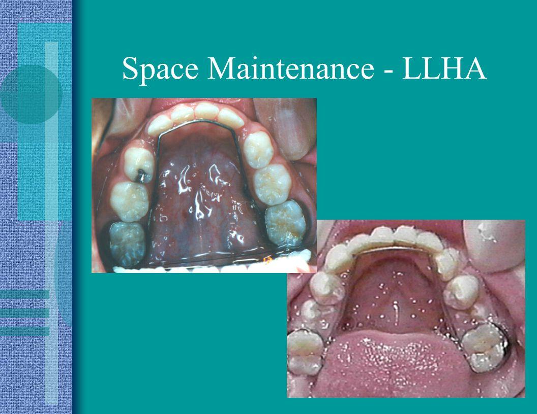 Space Maintenance - LLHA