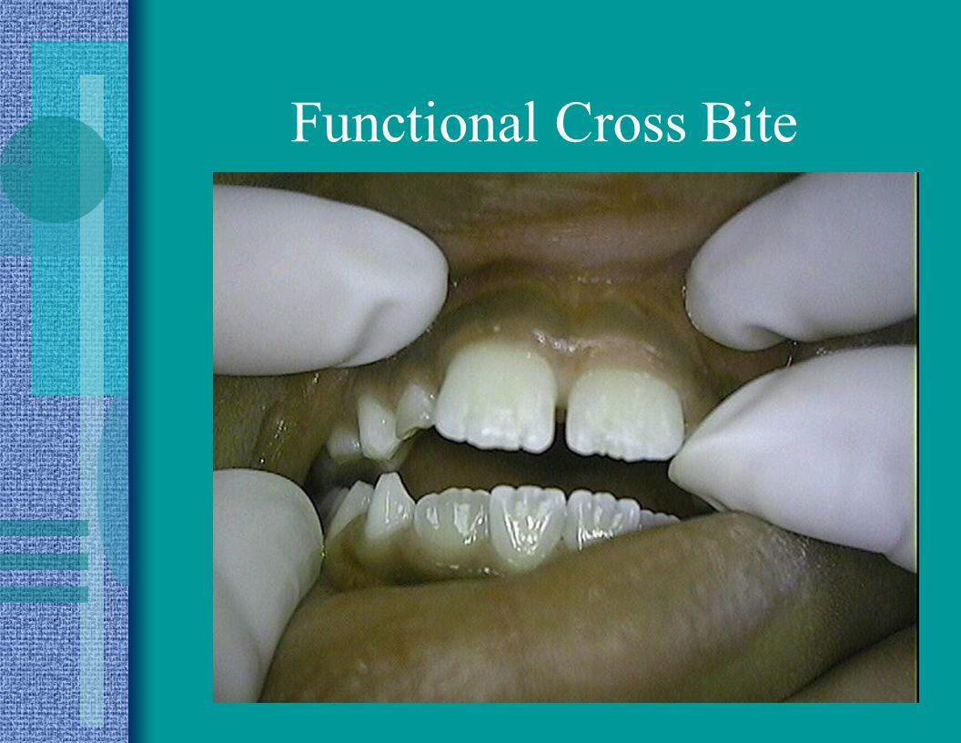Functional Cross Bite