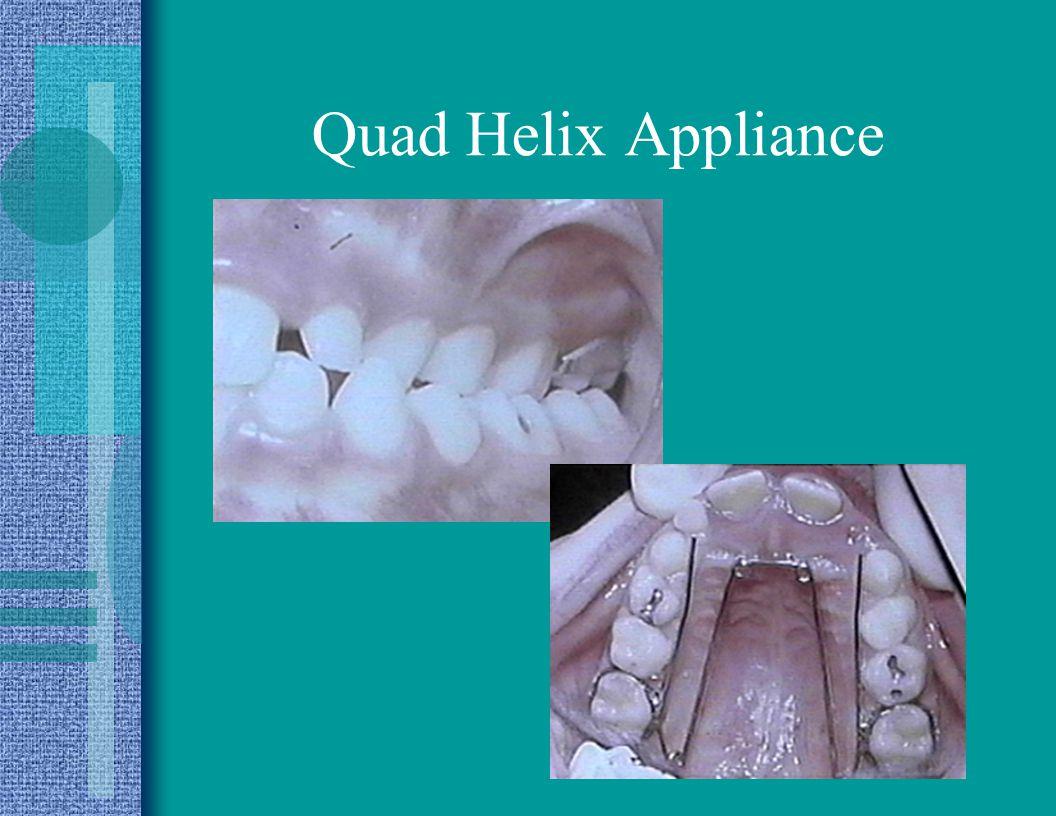 Quad Helix Appliance