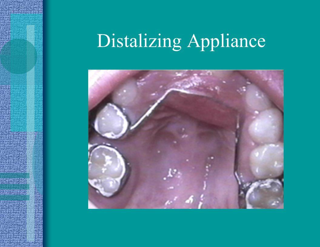Distalizing Appliance