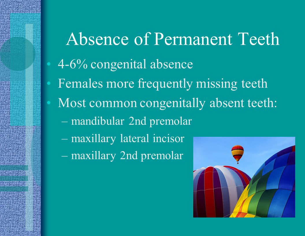 Absence of Permanent Teeth