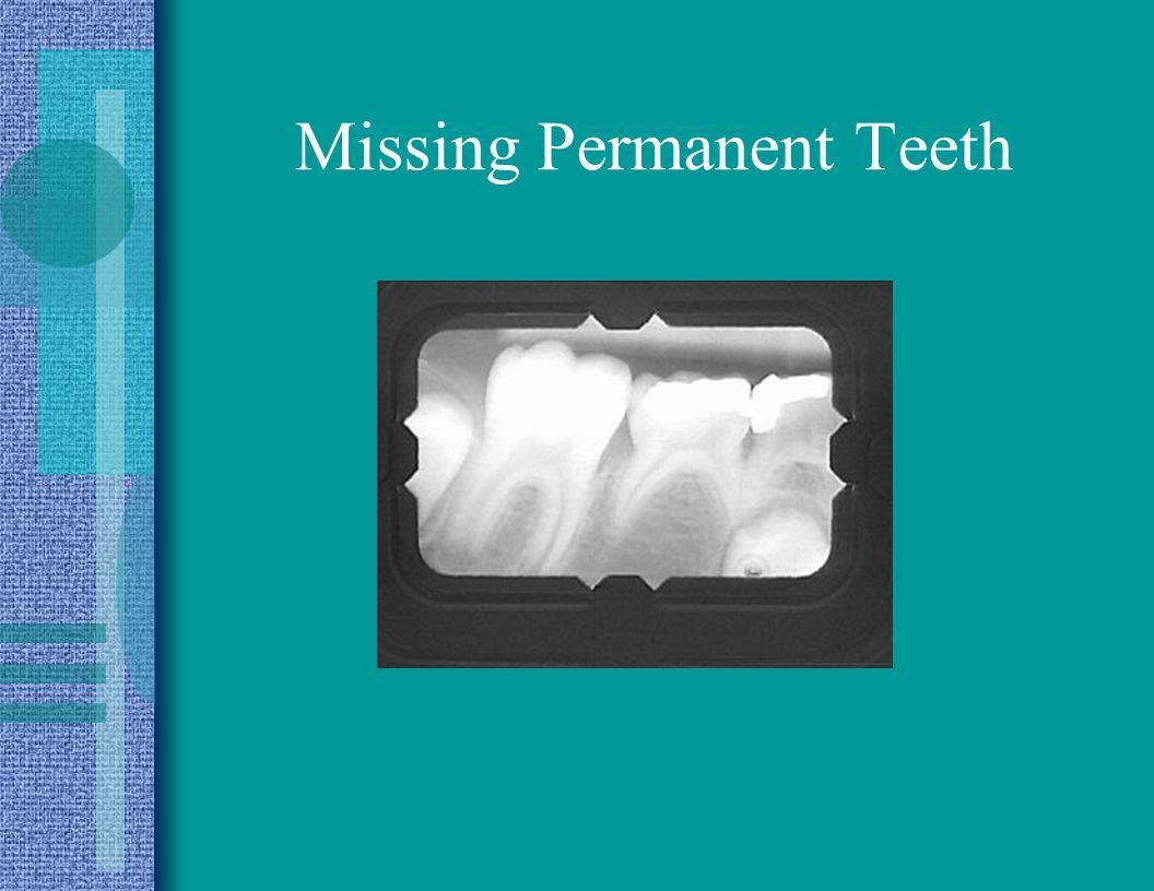 Missing Permanent Teeth