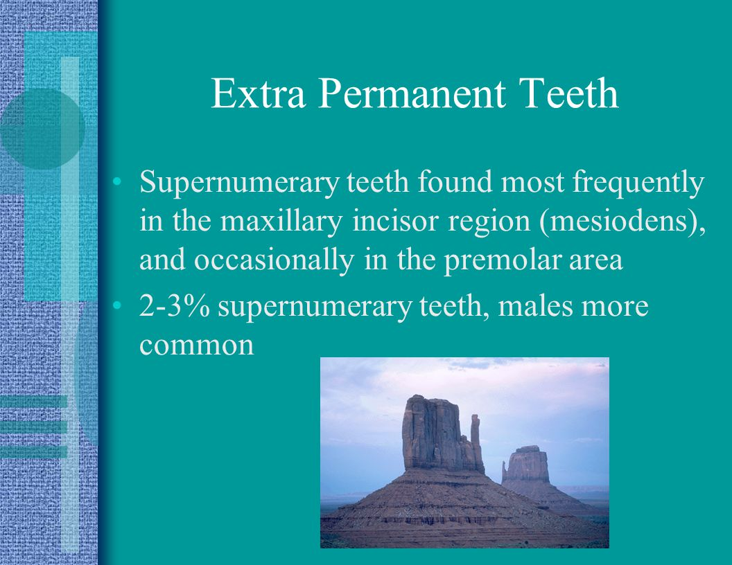 Extra Permanent Teeth Supernumerary teeth found most frequently in the maxillary incisor region (mesiodens), and occasionally in the premolar area.