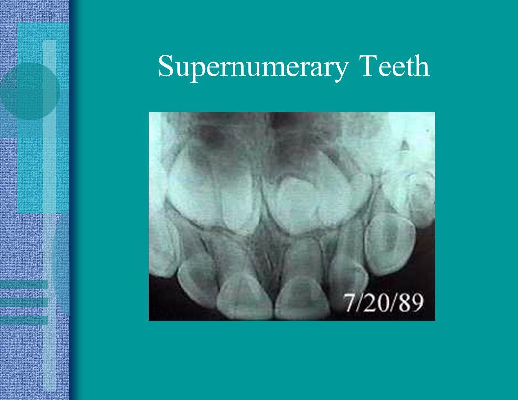 Supernumerary Teeth
