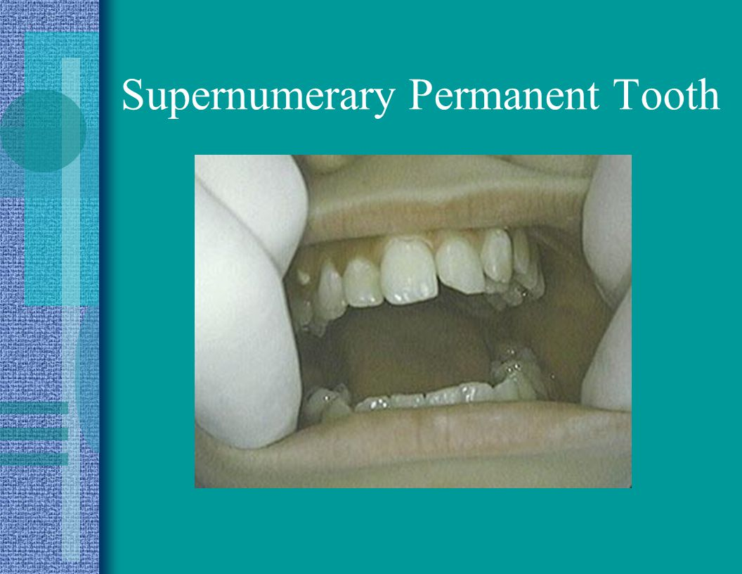 Supernumerary Permanent Tooth