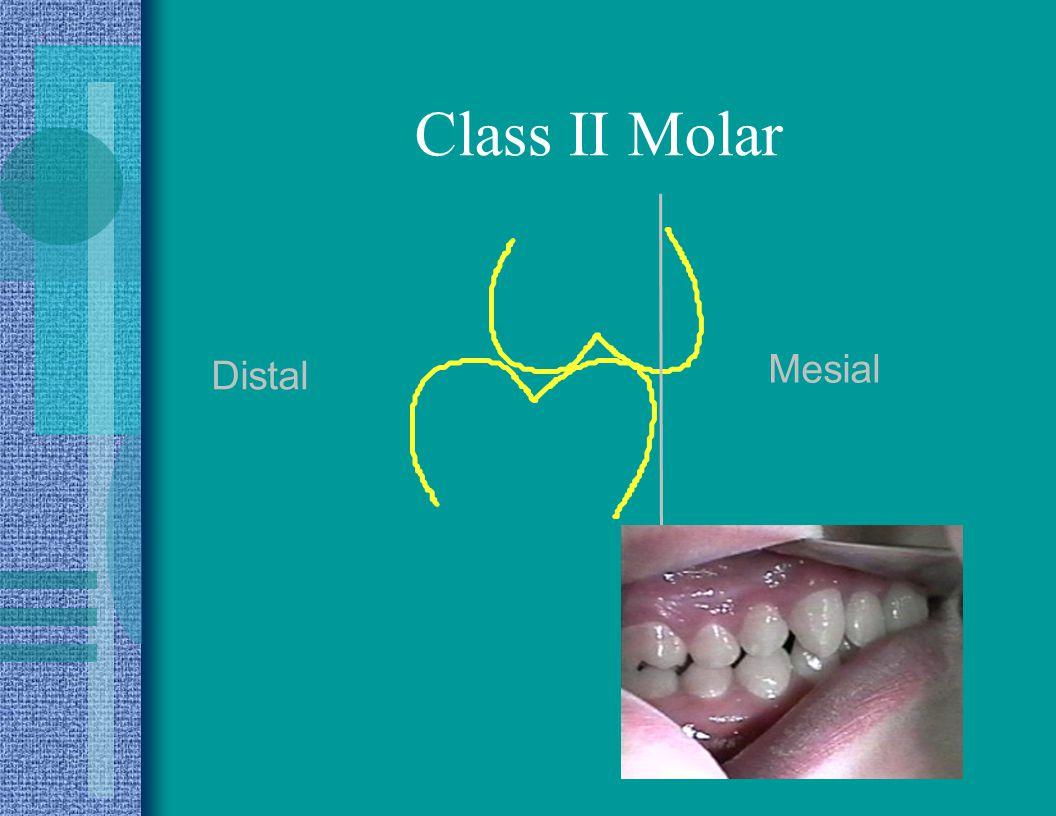 Class II Molar Mesial Distal