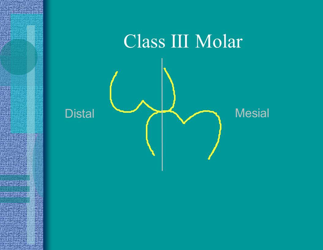 Class III Molar Distal Mesial