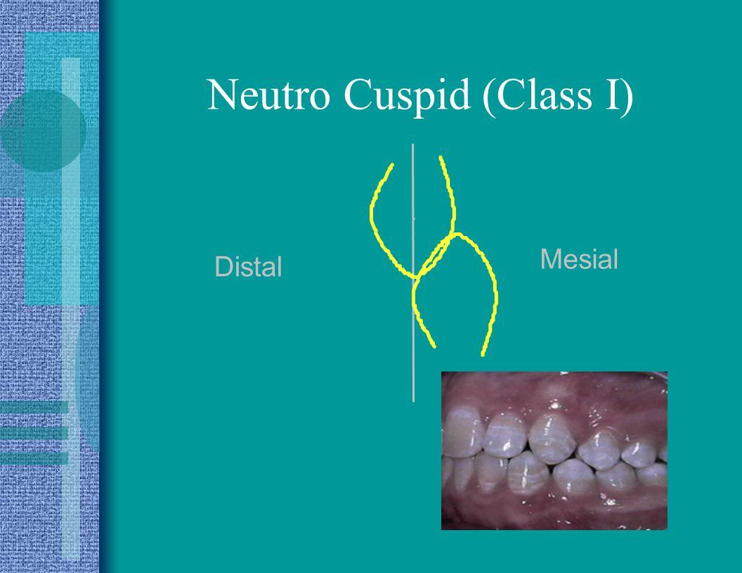 Neutro Cuspid (Class I)