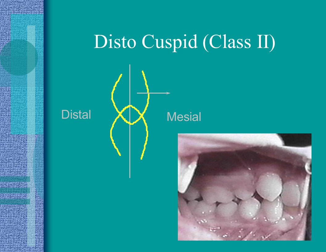 Disto Cuspid (Class II)