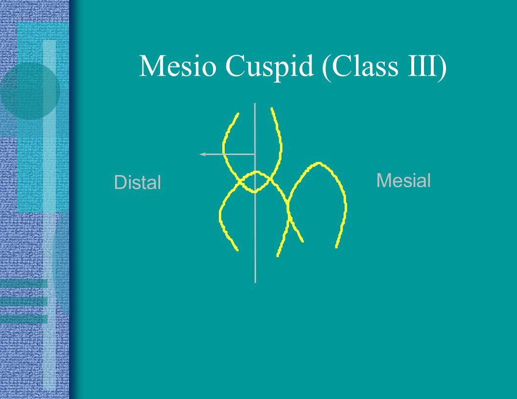 Mesio Cuspid (Class III)