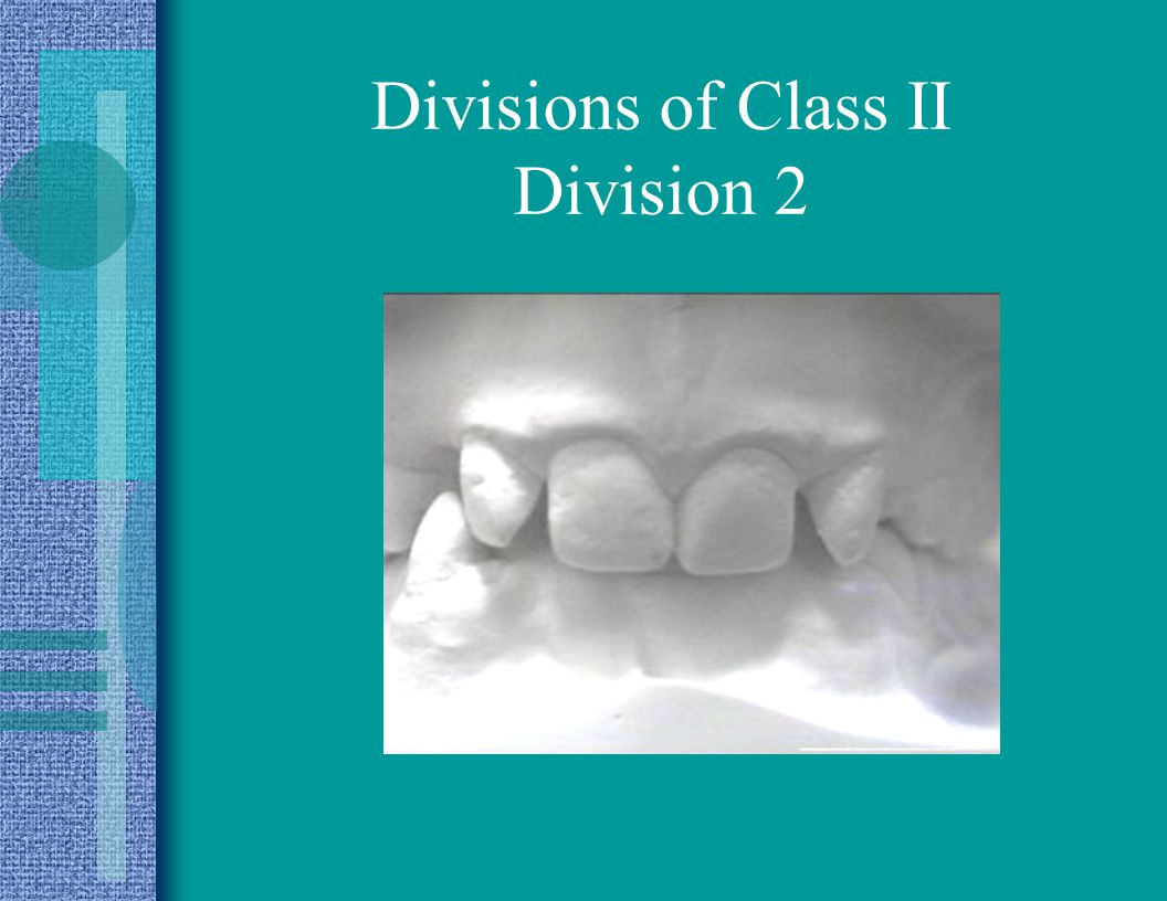 Divisions of Class II Division 2