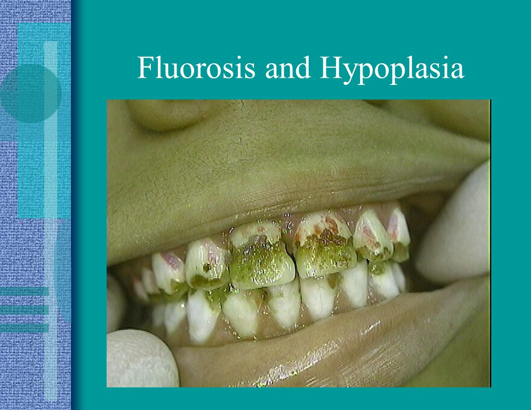 Fluorosis and Hypoplasia