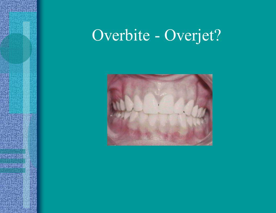 Overbite - Overjet